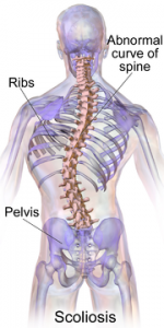Living With Scoliosis In Singapore