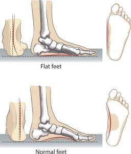 What does a flat foot look like