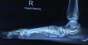 Weight baring X-ray
